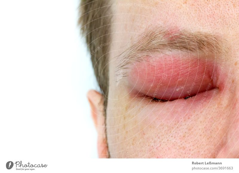 a man with swollen eye from a bee sting Bee sting face wasp sting edema injury red allergy swelling pricked eyelid infection medicine allergic reaction