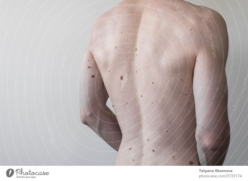 Male torso with a lot of moles, body health birthmark back dermatology skin medical melanoma care dermatologist spot disease naked human person brown adult