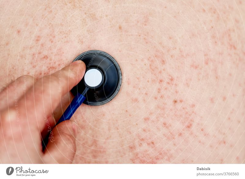Allergic rash on skin. Woman with dermatology problem on back skin allergy eczema infection disease health medical body red dermatitis epidermis closeup