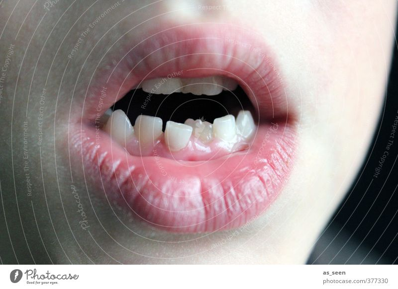 Braces? Child Mouth Lips Teeth 1 Human being 3 - 8 years Infancy Authentic Sharp-edged New Point White Healthy Health care Personal hygiene Precision Growth