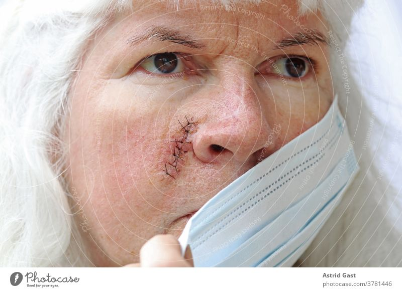 Duty to wear masks in case of injuries and operations Face Skin Woman Operation scars Scar Stitching threads Mask Mask obligation corona covid 19 op-mask Safety
