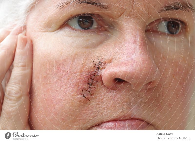 An older woman has a surgical scar on her face Face Skin Woman Senior citizen operation scar scars Scar Stitching Operation threads Accident Sewing