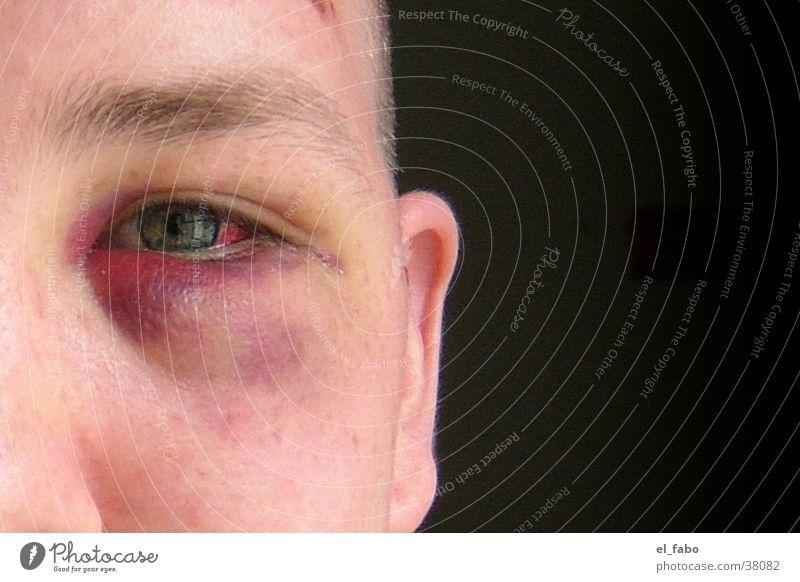 multicultural Argument Human being Black eye Violet plants brawl ...