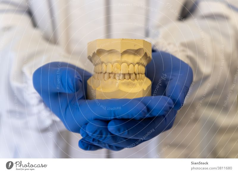 Dentist hands holding teeth model, denture dental tooth jaw dentist mouth white uniform. oral health hygiene medical dentistry care braces blue gloves
