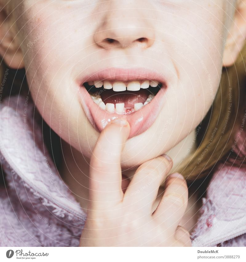 Girl shows gap in her teeth because she has lost her first baby tooth Tooth space Milk teeth Child Infancy Teeth Mouth Colour photo Lips 3 - 8 years Head Face