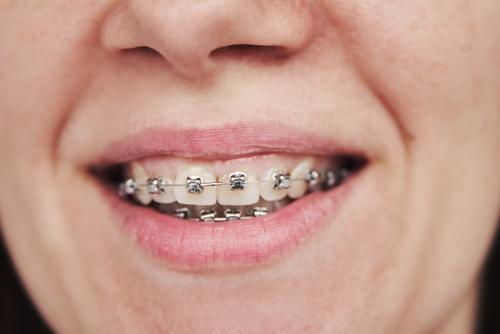 Woman with braces on teeth, closeup orthodontic dental bracket dentist woman smile treatment beauty mouth healthy beautiful care lips white hygiene metal adult