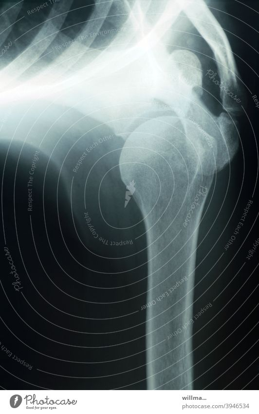 unhealthy and yet useful - the X-ray X-ray photograph Joint Shoulder Joint Radiology Diagnosis Technology Health care Skeleton Bone X-rays