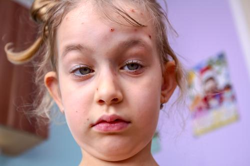 Portrait of child has skin infected with chickenpox Ache Bacteria Blisters Bubble Care Caucasian Chickenpox Child Contagious Cry Dermatology Disease Emotion