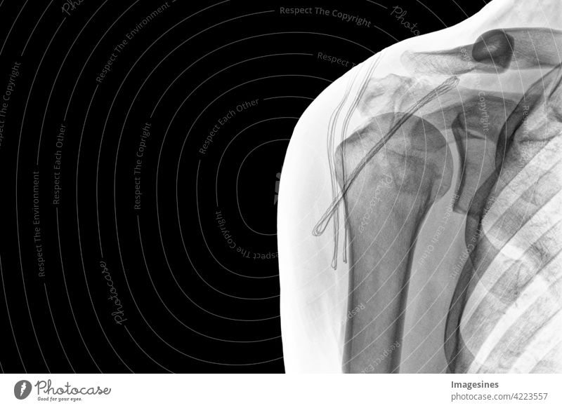 X-ray shoulder on black background. Chronic dislocation of the long biceps tendon after surgery. SSC tendon corkscrew anchor. inverted image more adult Anatomy