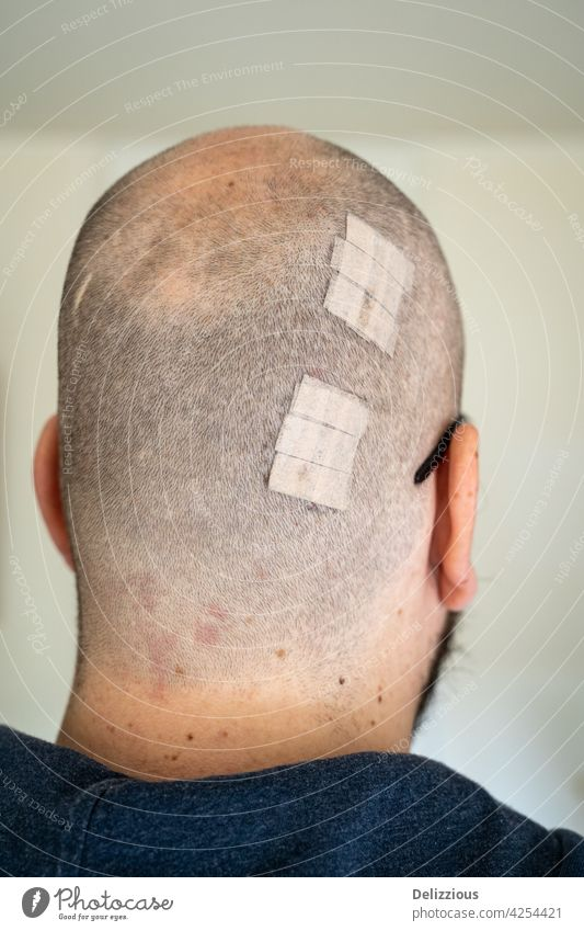 A man with a wound on the back of his head covered with plasters, vertical wounds male glasses white caucasian wounded hurt recover heal healing stitches
