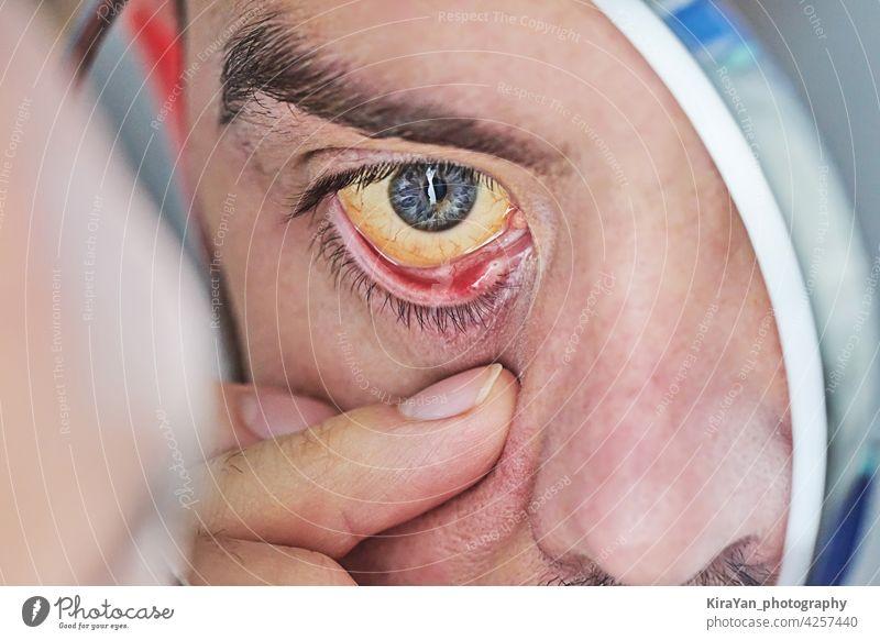 Human eye with yellow eyeball, closeup. Yellow eyes is a symptom of liver disease or hepatitis human eye yellow eyes liver infection bilirubin