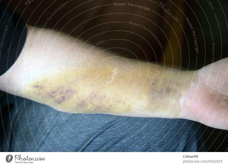 Allergy on the arm allergy skin disease health medical care hand allergic patient illness reaction medicine rash epidermis dermatitis pain dermatology people