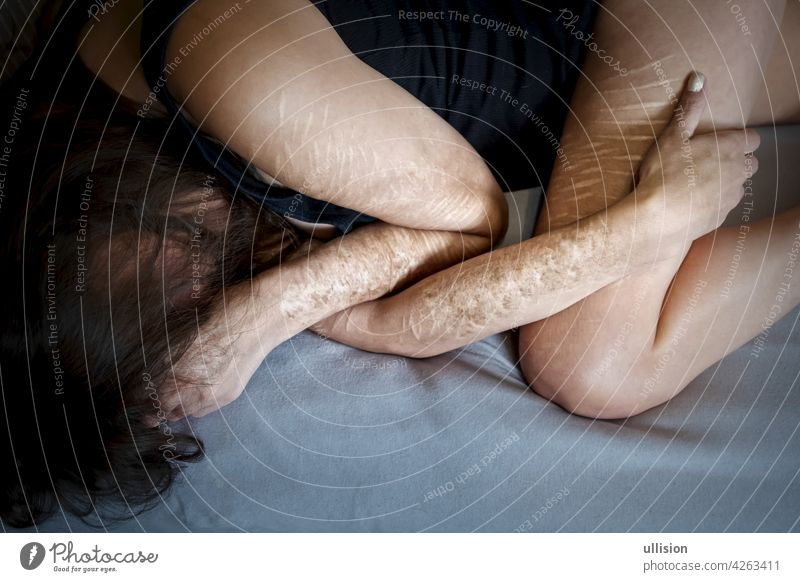 Arms and legs of frustrated disillusioned sick woman lying on bed with heavy Cuts and scars of self-mutilation in frustration, self-abusing, Borderline personality disorder