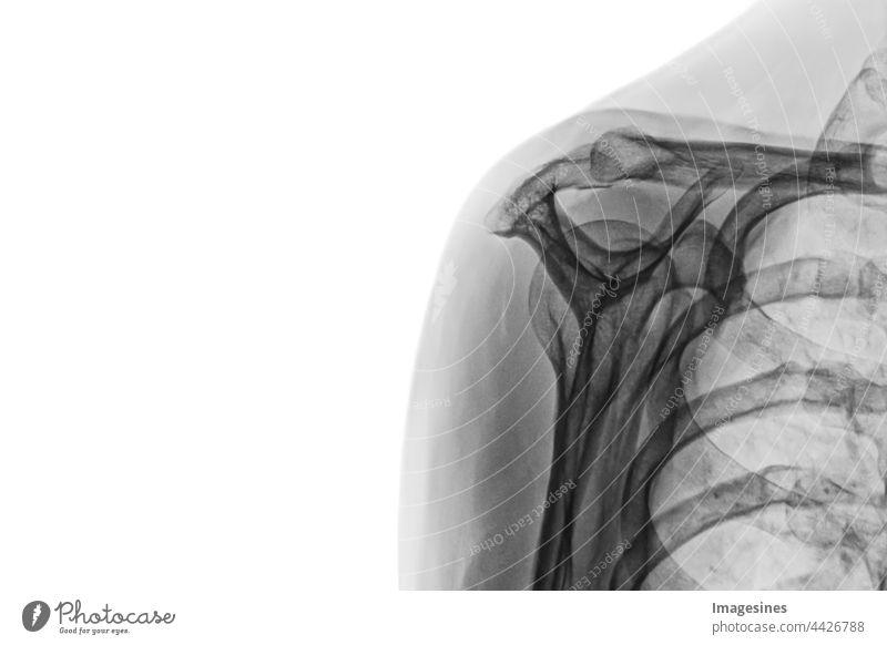 X-ray image of female healthy body. X-ray of female shoulder isolated on white background. Adults Anatomy arm Biceps Biology Biomedicine Bone Chest - Torso