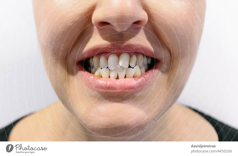 Woman mouth with dental crowding female crooked tooth unrecognizable woman orthodontic problem gingival embrasures ugly smile dentist dentistry real medicine