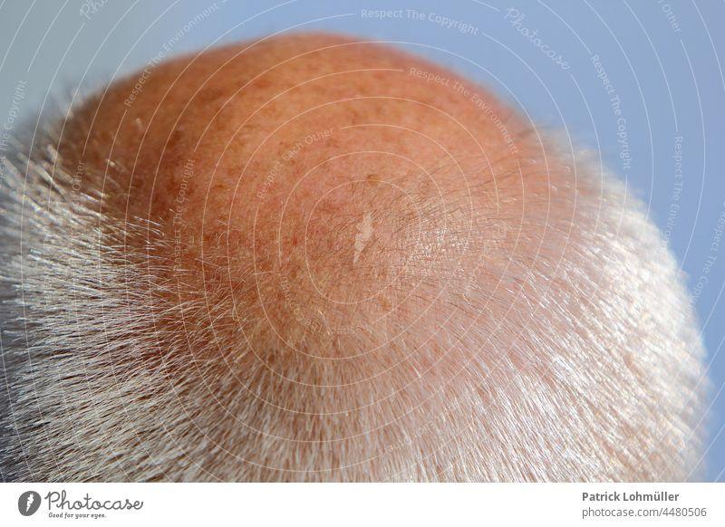 bald head Bald or shaved head Head hair Skin person Man People Near macro Hair loss Old genetic scalp hairstyle Short Gray residual hair men grandpa Pensioners