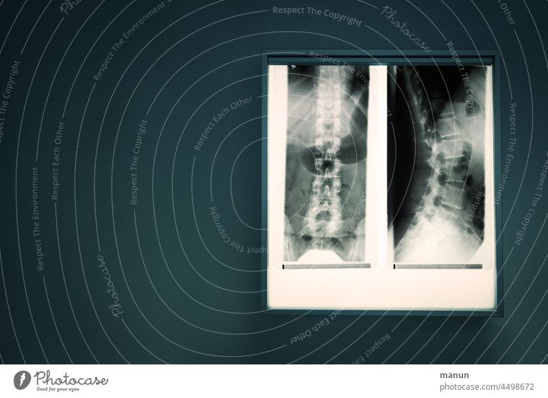 X-ray image of the spine Spinal column X-ray photograph Radiology Diagnosis Doctor Health care Healthy Skeleton Technology clinic Illness Bone med Hospital
