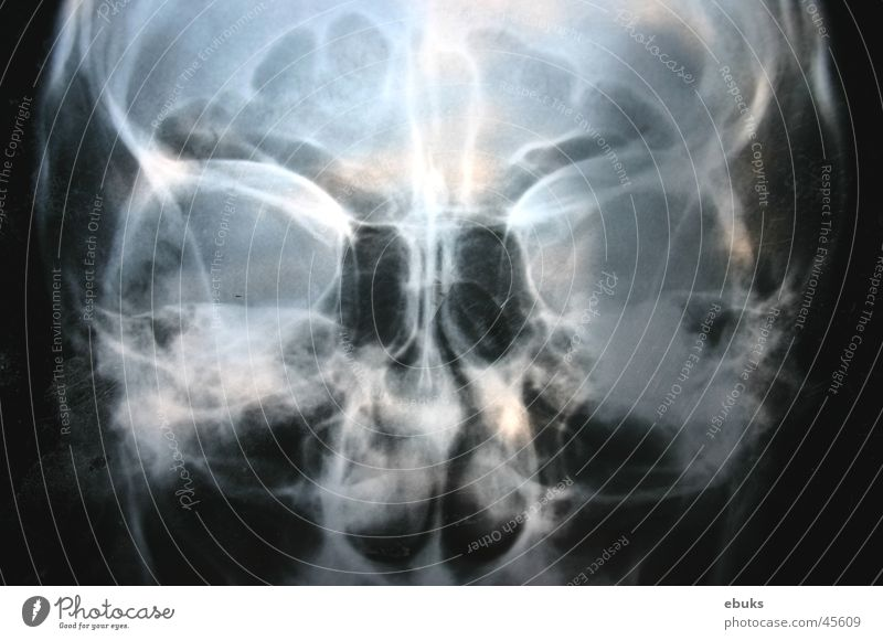 Roentgen head 2 Black White Photographic technology Head Death's head Radiology