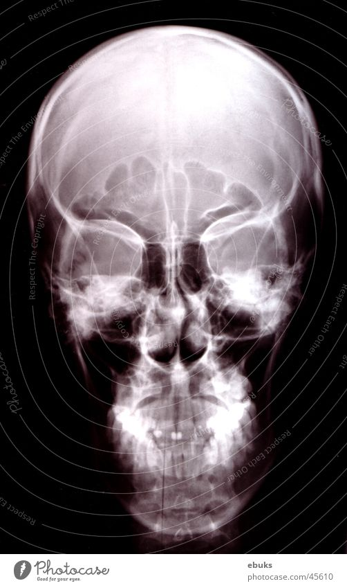 White Black Head Skeleton Death's head Photographic technology