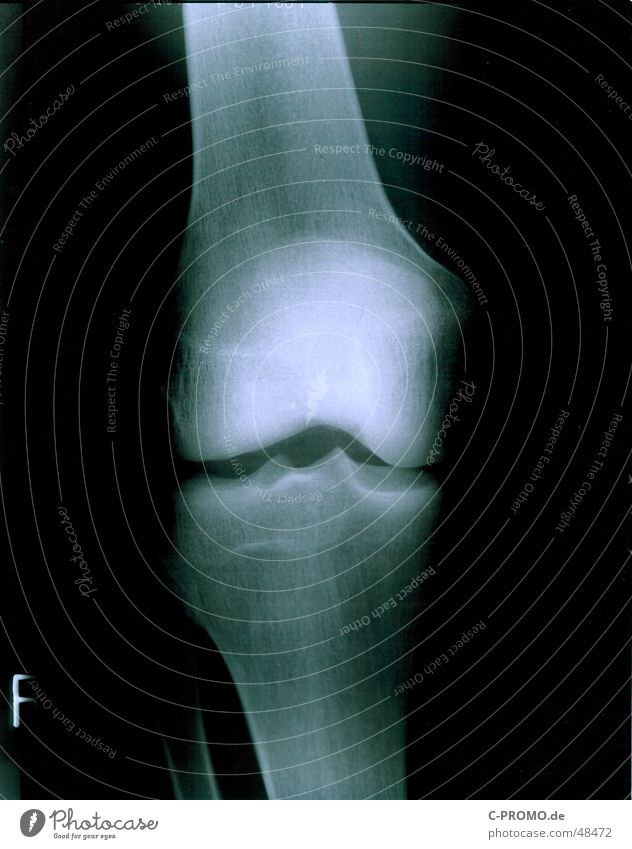 My right knee :: my right knees Health care Knee Doctor Joint Broken Knee cap Skeleton Radiation Black Light White Healthy chirog Human being fluoroscopy Pain