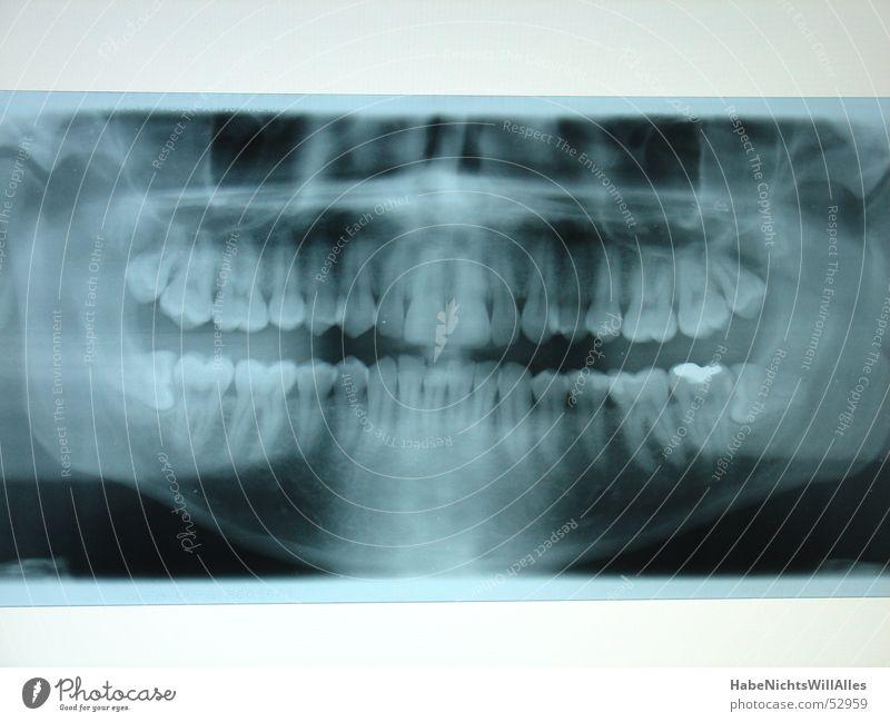 Blue Teeth Skeleton Root Radiology Pine X-rays Lightbox Amalgam Oral cavity
