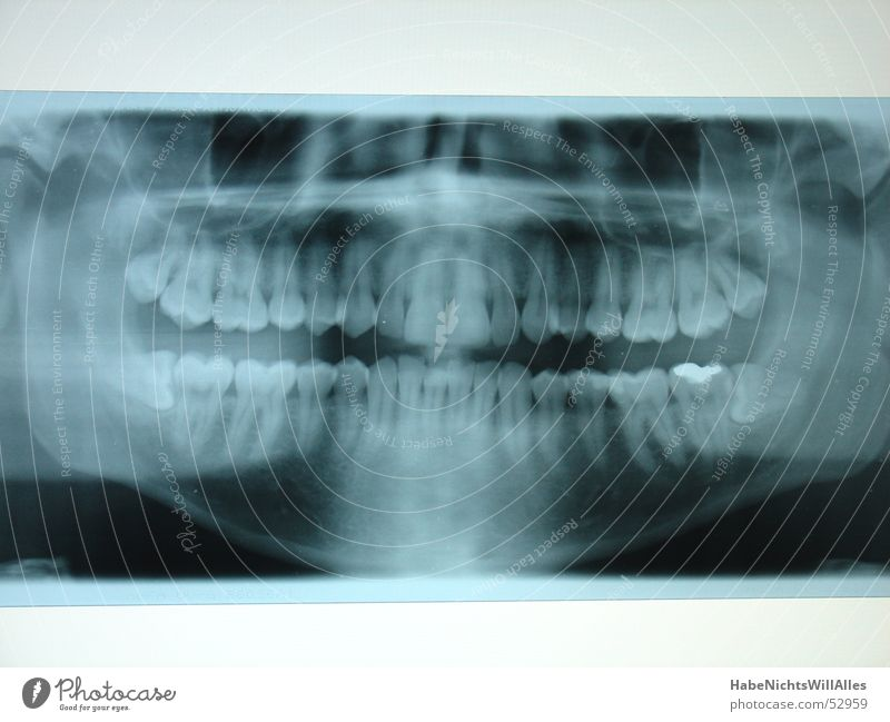 Slate pine? Skeleton Lightbox Amalgam X-rays Blue Root Pine row of teeth lead seal Oral cavity Teeth Radiology