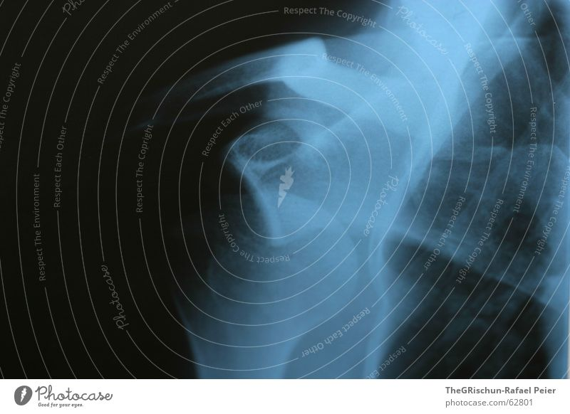 Blue Black Bathroom Doctor Pain Shoulder Ribs Skeleton Basketball Right
