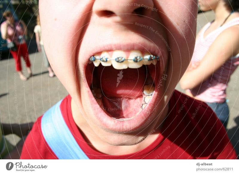 Open your mouth! Braces Girl Glittering Loud Red Protest Exterior shot Healthy Anger Aggravation Child Mouth Silver Tongue Lips Scream Blue Skin Nose