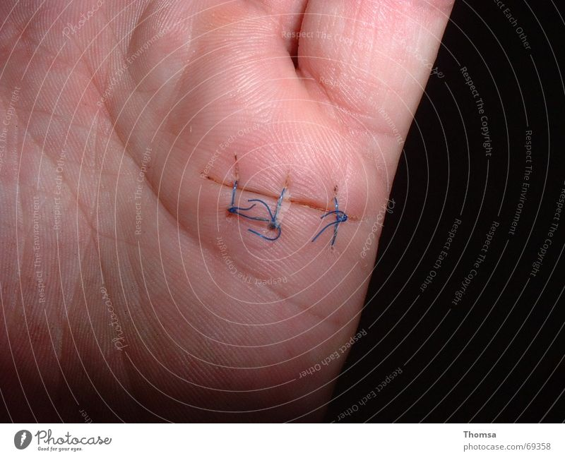 sewn scar on the hand Hand Wound Stitching Palm of the hand Parts of body Scar sewn wound sutured
