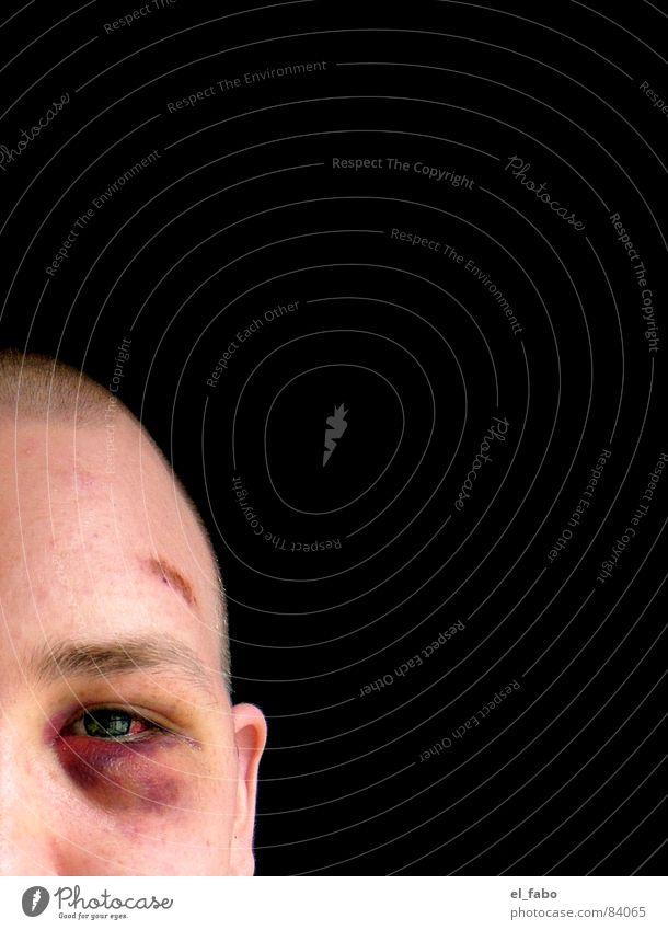 Man Force Pain Argument Violet plants Robbery Brutal Black eye