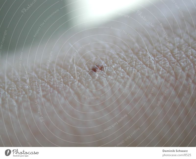 Dot Mole Macro (Extreme close-up) Human being Skin Detail Hair and hairstyles melanoma Pigmented mole
