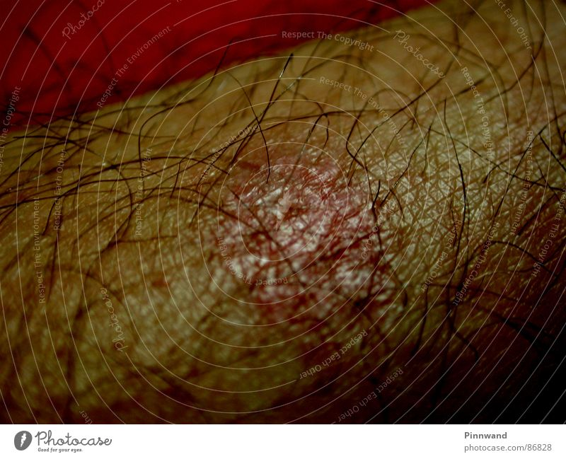 hairy scenery Burn Wound Red Human being Scar Macro (Extreme close-up) Hair