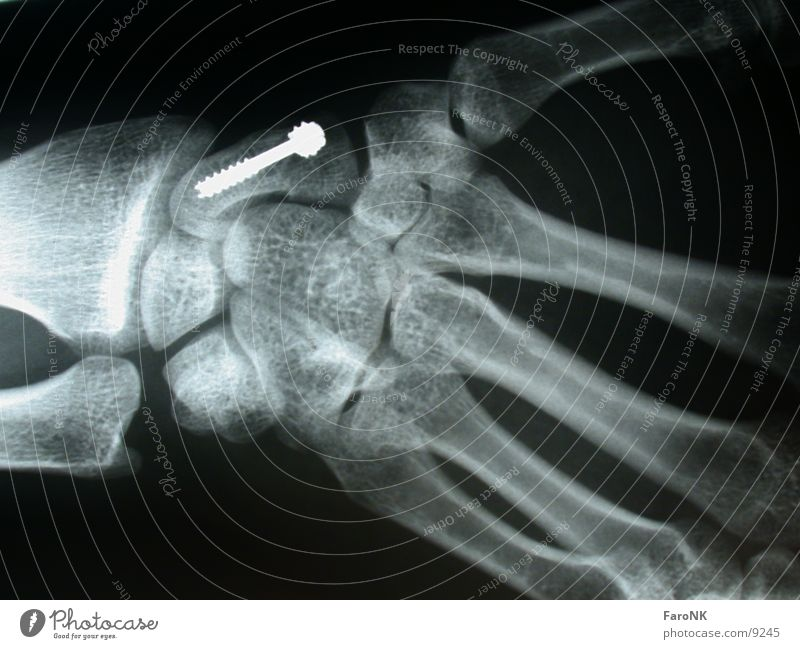 Screwed Hand X-ray photograph Skeleton Obscure Radiology