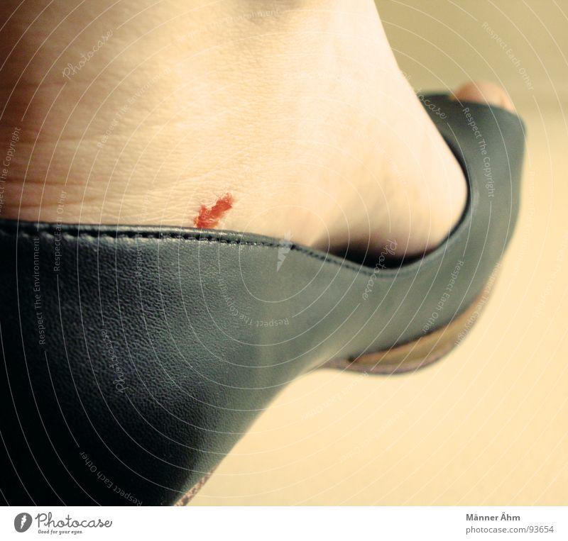 women's complaint Woman Footwear Leather Blood Leather shoes Abrasion Wound Sharp pain Black Bubble Landing Feet Pain Skin Close-up