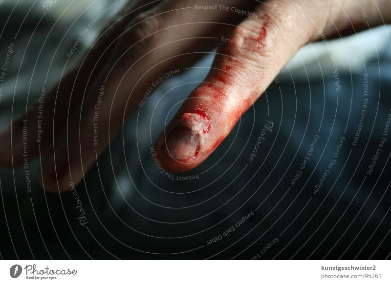 Man Hand Red Fingers Pain Blood Accident Nail Wound Human being